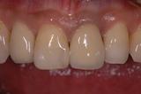 歯周病18