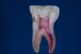 歯内療法10