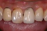 歯周病17