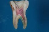 歯内療法14