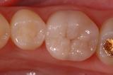 歯内療法29