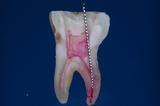 歯内療法13