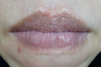 唇に水疱 (35)