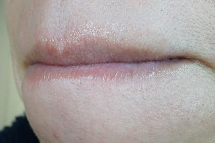 唇に水疱 (36)