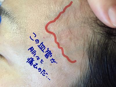偏頭痛の血管