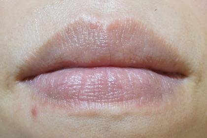 唇に水疱(39)