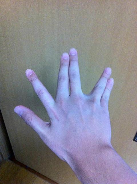 【衝撃】これwww指がたりないwwww