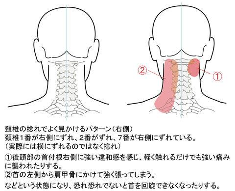 頚椎の捻れ_C1右C2左