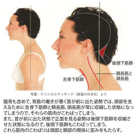 首が前に出た状態の後頭下筋群、舌骨下筋群、頚長筋、頭長筋