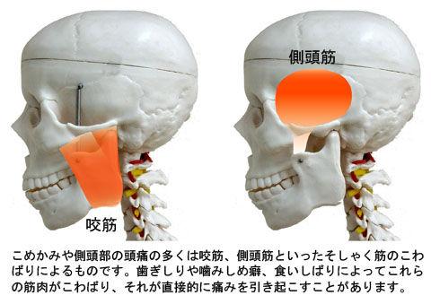 側頭部の頭痛(咬筋と側頭筋)