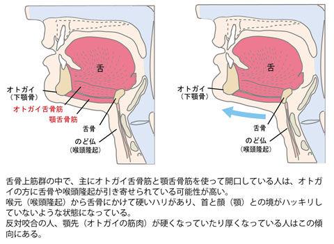 オトガイ舌骨筋と顎舌骨筋のこわばり状態
