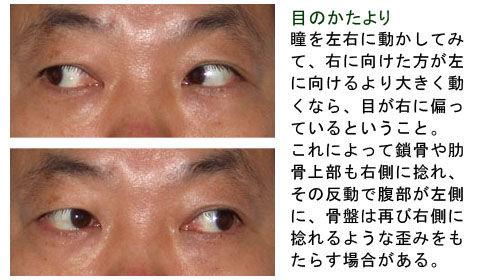 目の偏りと骨盤の歪み