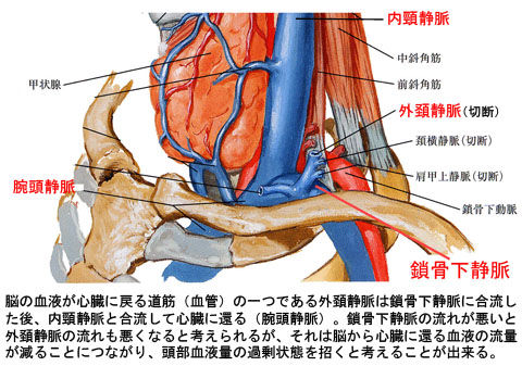 外頚静脈と鎖骨下静脈の停滞