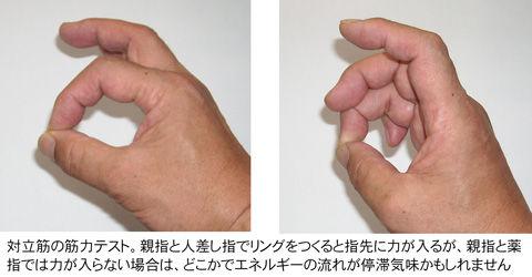 母指と示指・環指の対立筋検査