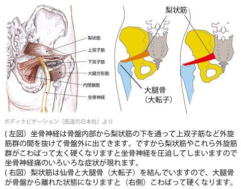 梨状筋と坐骨神経2