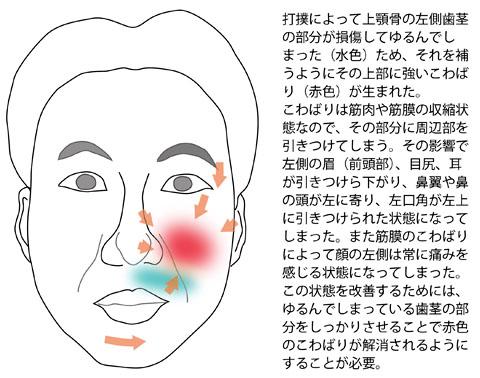 歯茎の打撲による顔の歪みと痛み