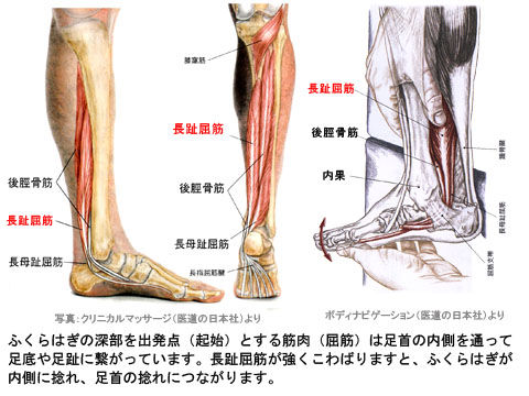 長趾屈筋のこわばりと脛骨の捻れ