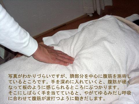 腹直筋施術