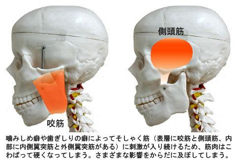 噛みしめ・歯ぎしりによるそしゃく筋の「こ」