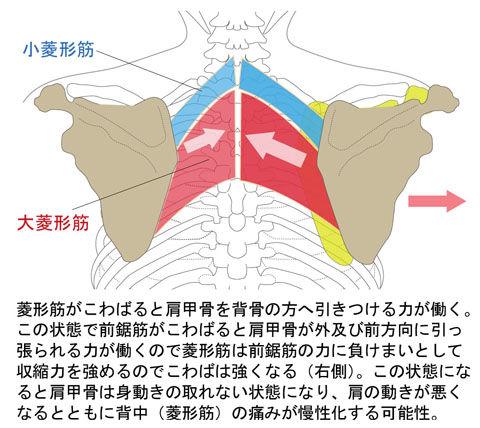 菱形筋と前鋸筋の「こ」による背中の痛み