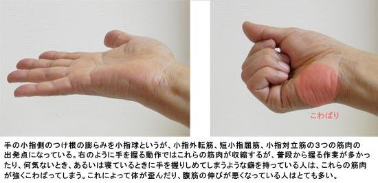 小指球のこわばり