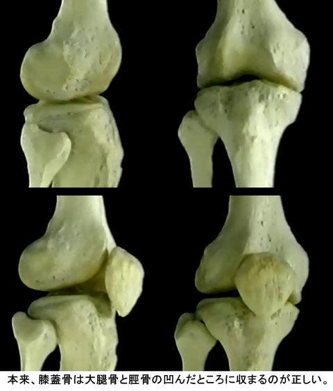 膝関節での膝蓋骨の位置