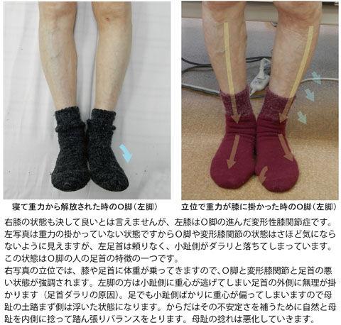 O脚の人の足首と足