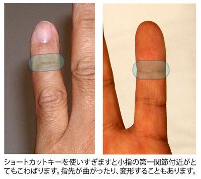 小指先の「こ」