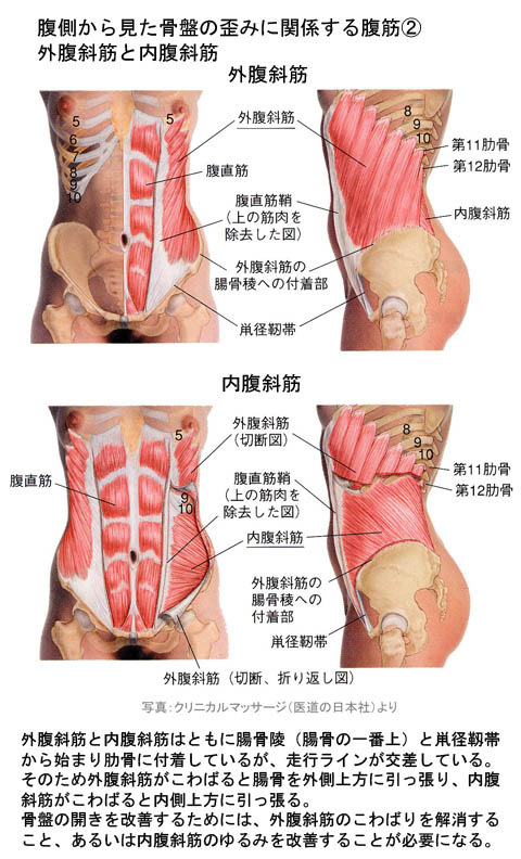 腹側から見た骨盤の歪み_2