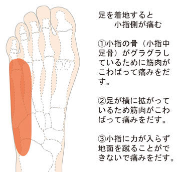 小趾側の痛み