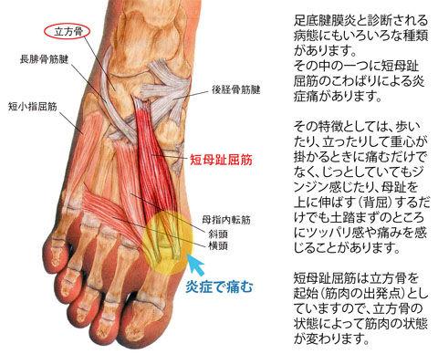 足底腱膜炎(短母趾屈筋)