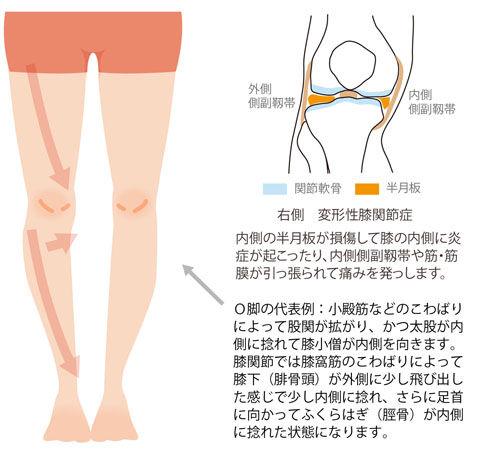 O脚と変形性膝関節症