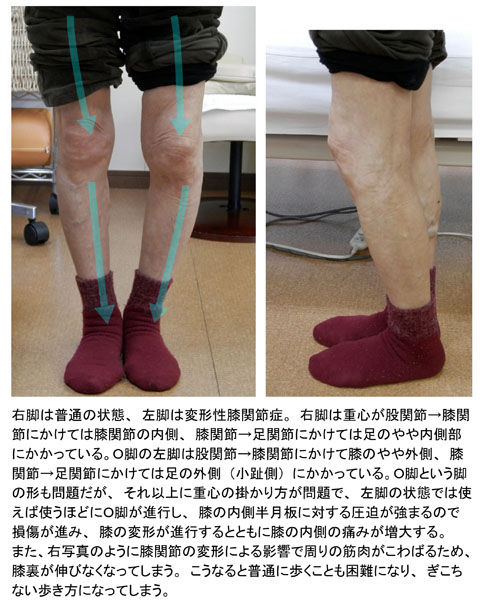 変形性膝関節症01