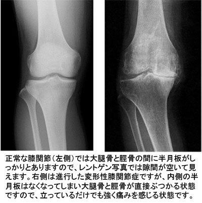 正常膝と変形膝(レントゲン)