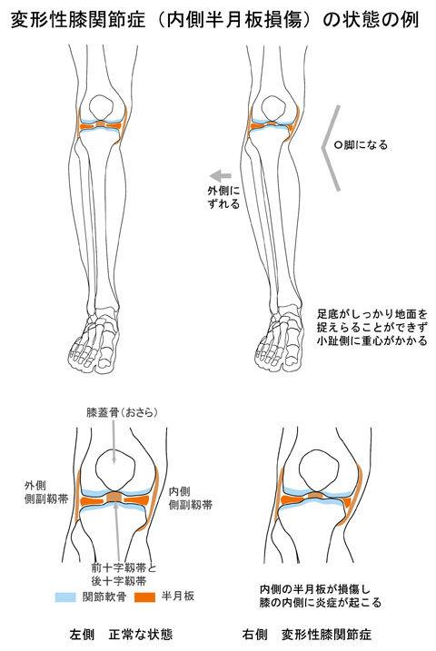 変形性膝関節症(半月板損傷)