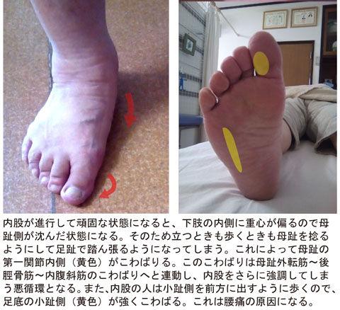 内股による母趾の捻れ