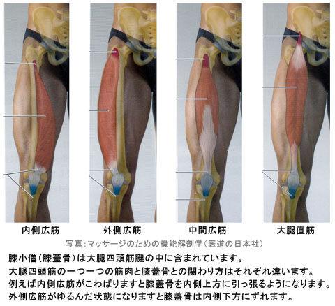 大腿四頭筋と膝蓋骨の関係