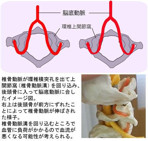 椎骨動脈の関節突起回り込み比較