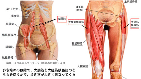 大腰筋か筋膜張筋