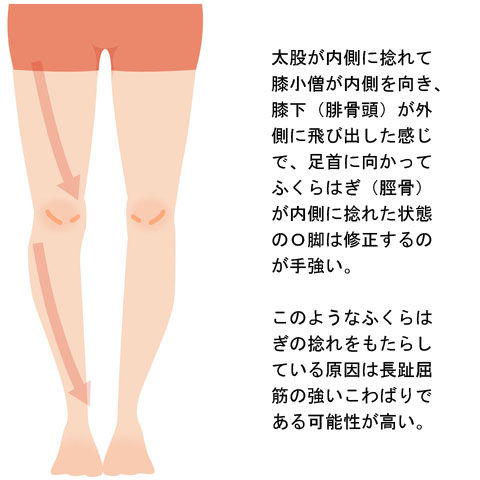 O脚_下腿の内旋