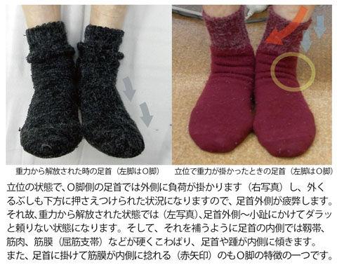 O脚の人の足首と足2