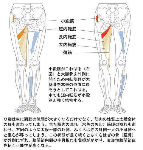 O脚と下肢の筋肉・骨格02