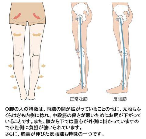 O脚と反張膝