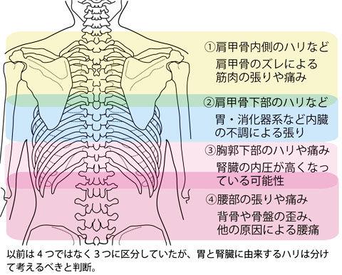 背中の張りや痛みの原因区分2