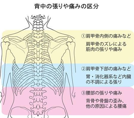 背中の張りや痛みの区分