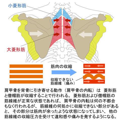 菱形筋と僧帽筋の「ゆ」による背中の痛み