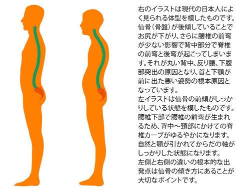 骨盤の前傾と後傾比較