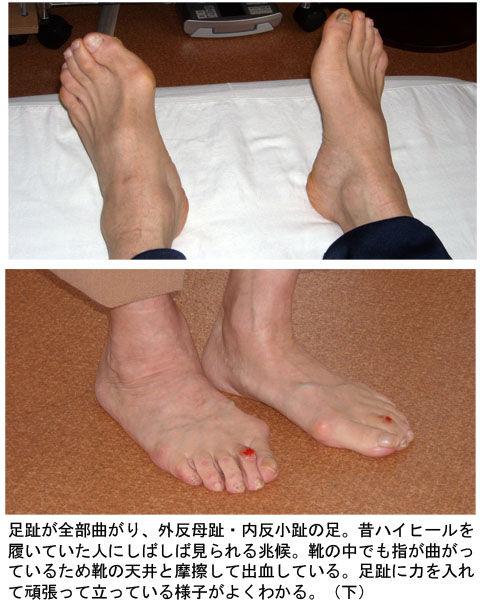 足趾が曲がり外反母趾・内反小趾