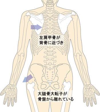 左肩甲骨と大転子