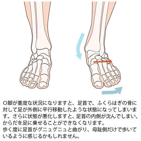 重症なO脚の足首